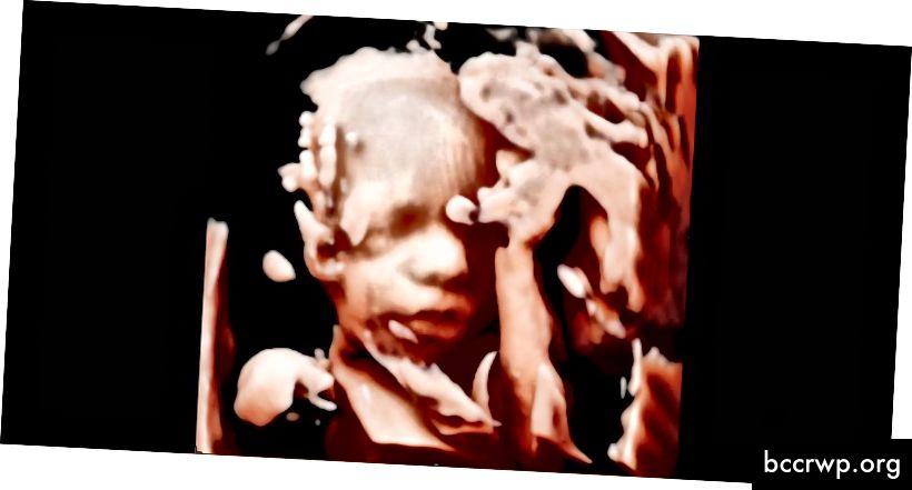 स्कैनिंग क्लिनिक में एक बच्चे की सुंदर 3 डी-एचडी छवि