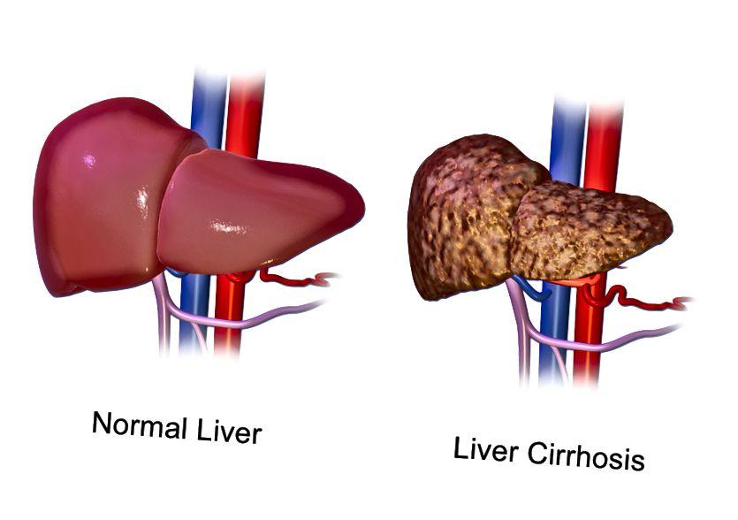 मुख्य अंतर - लिवर सिरोसिस बनाम लिवर कैंसर