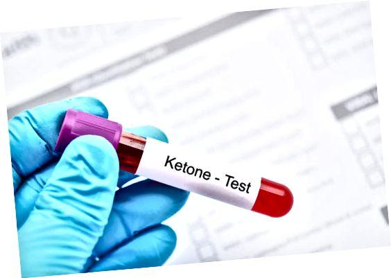 кръвен тест за кетоза