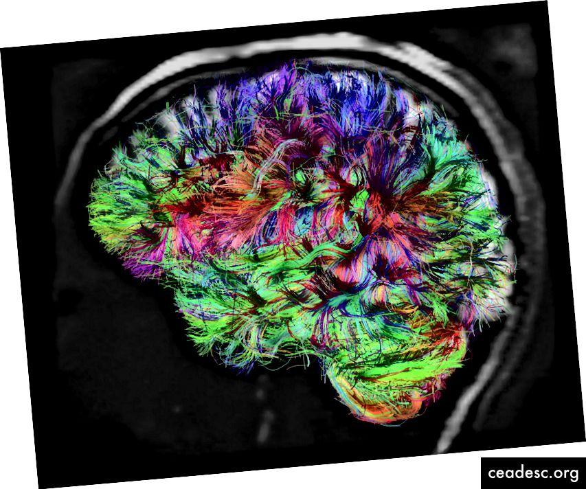 Crédito: V.J. Wedeen y L.L. Wald, Centro Martinos para Imágenes Biomédicas en MGH