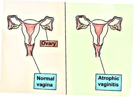 Andere vormen van vaginitis begrijpen