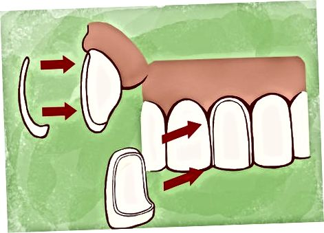 Demander de l'aide à des professionnels dentaires