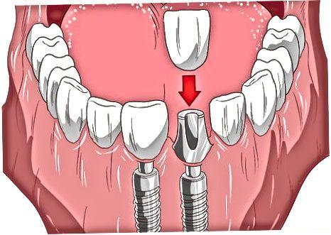 曲がった歯を防ぐ