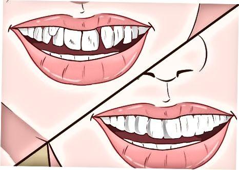 矯正歯科医を見つける