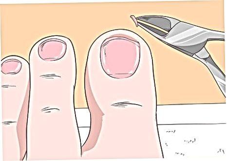 Veilig trimmen van dikke nagels