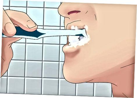 歯とブレースのクリーニング