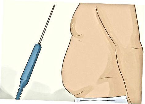 Gewichtsverliesbehandelingen proberen