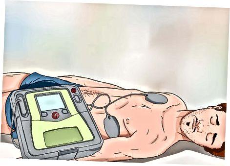 Bruke AED