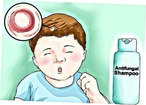 Léčení kožního onemocnění