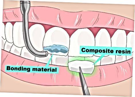 Dişlərinizin səthini örtmək