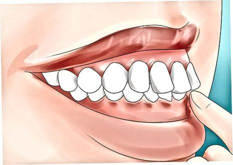 Dişlerinizi İncelemek