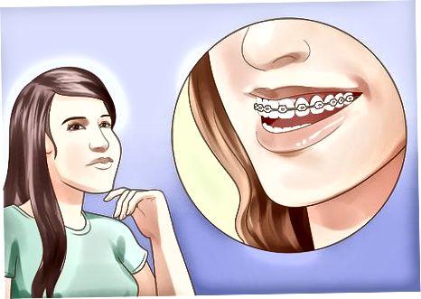 Diş Teli Almayı Düşünme