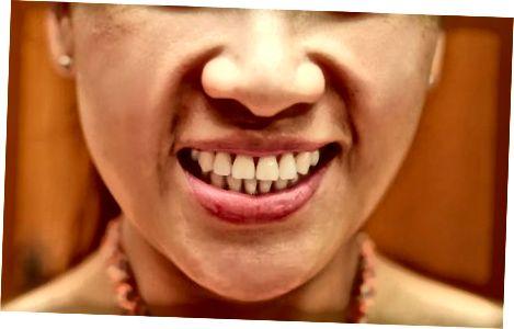 하얀 치아 유지