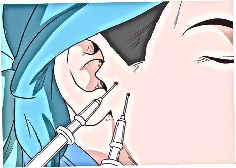 Получаване на дентална хирургия