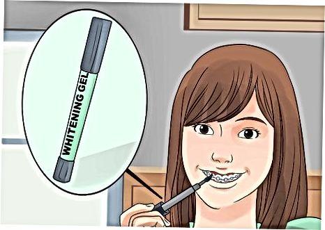 Bruke hjemme-bleking behandlinger