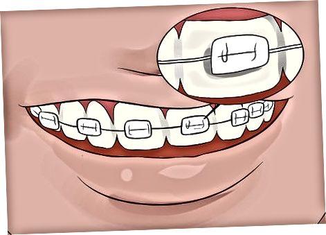 Whitening Tennene dine hos Tannlegekontoret