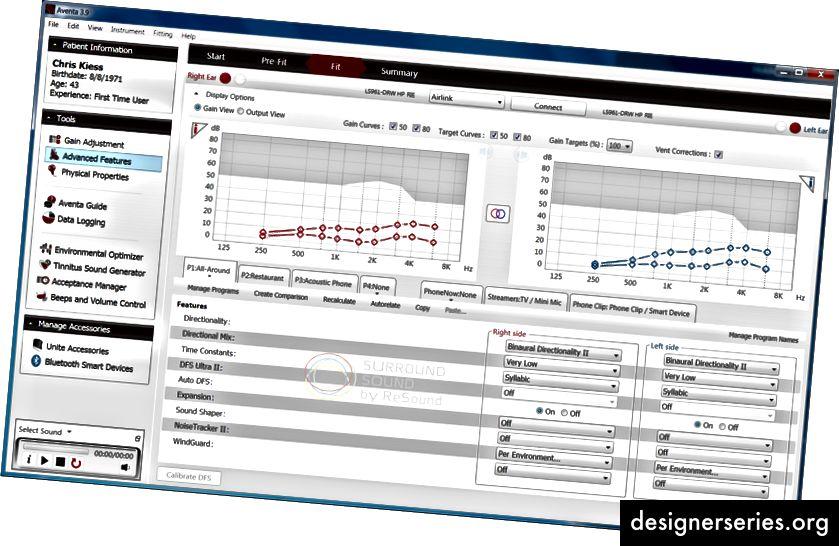 GN ReSound Aventa 3.9 Anpasssoftware für Hörgeräte - Bildschirm mit erweiterten Funktionen