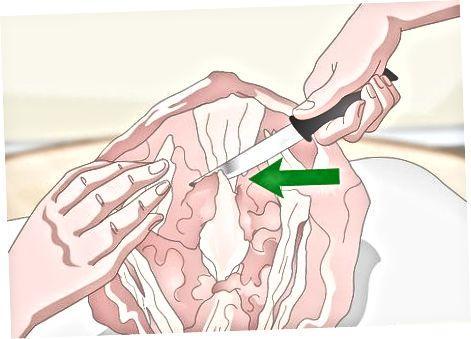 Entfernen des Kielknochens