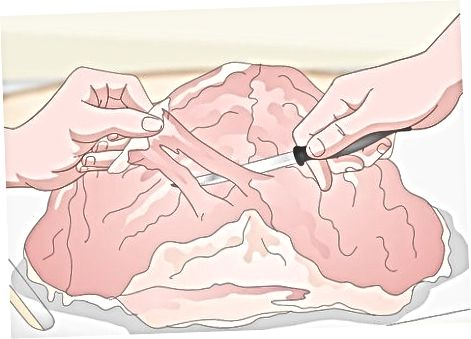 Zusätzliche Knochen entfernen