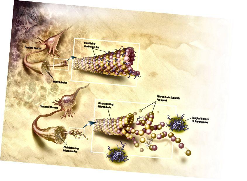 Diagramm, wie Mikrotubuli mit Alzheimer-Krankheit zerfallen. Kredit: Alzheimer-Aufklärungs- und Überweisungszentrum, ein Dienst des Nationalen Instituts für Altern.