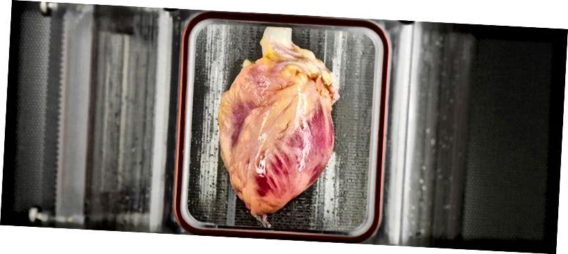 Учените са отглеждали органи, като сърцето по-горе от стволови клетки. Въпреки това, тези лица се отхвърлят, когато се имплантират в нечие тяло, ако клетките не са собствени.