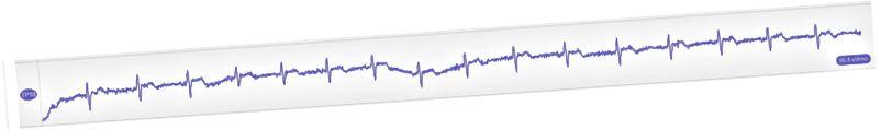 Kiểm tra nhịp tim của tôi trong biểu đồ ECG này được ghi lại bằng thiết bị Muse