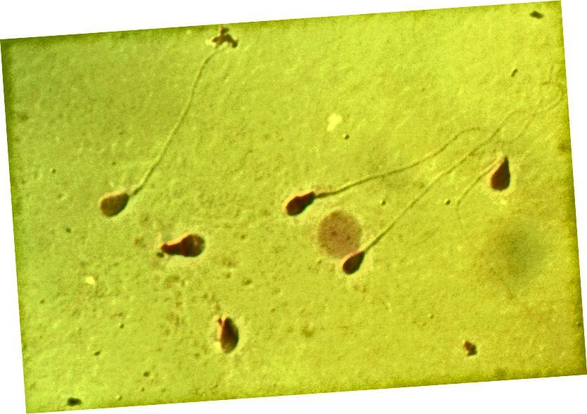 Méadaíodh sperm an duine le codarsnacht trasnaíochta difreálach 3,000 uair. Grianghraf: Doc. RNDr. Josef Reischig, CSc. trí Wikimedia Commons / CC BY-SA 3.0