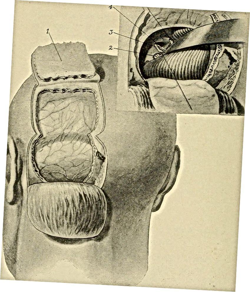 A kisagy hátsó nézete a Cerebellum daganatok című könyvből az Internetes Archívumon keresztül.
