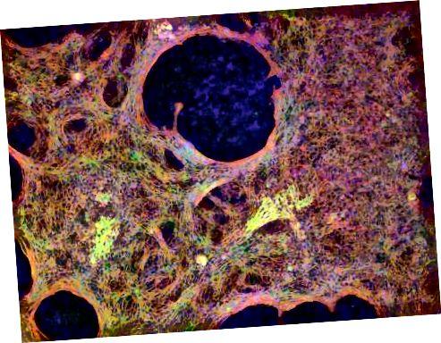 Ti su kardiomiociti reprogramirani iz normalnih uzoraka kože odraslih ljudi. Zasluge: Matt Spindler / Gladstone Instituti