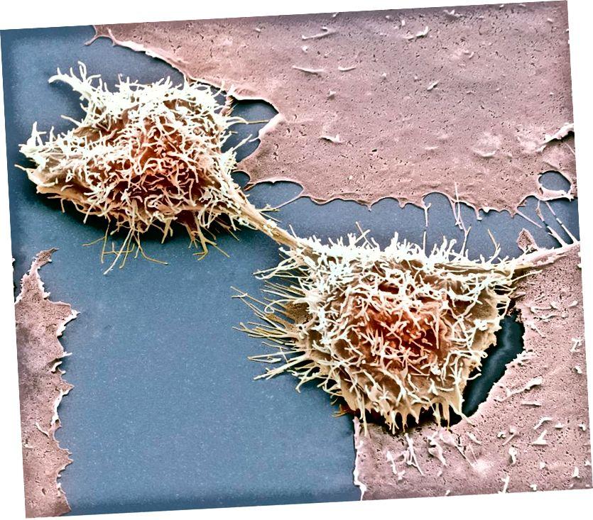 Teilen von HeLa-Zellen, Rasterelektronenmikroskopie. Kredit Steve Gschmeissner. HeLa-Zellen, die aus dem krebsartigen Gebärmutterhals von Henrietta Lacks stammen, sind eine der größten Kontaminanten in falsch identifizierten Zelllinien.