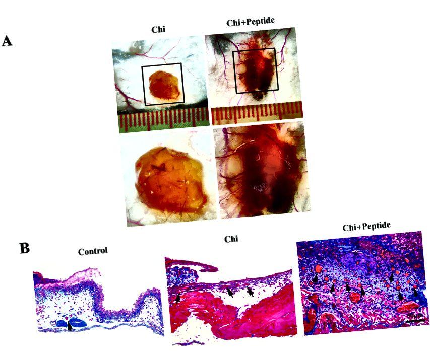 Idrogel di chitosano modificato con peptidi che porta alla formazione di nuovi vasi sanguigni. (Chen et. Al (2015). Peptide mimetico della laminina SIKVAV: idrogel di chitosano che promuove la guarigione delle ferite migliorando l'angiogenesi, la riepitelizzazione e la deposizione di collagene. J. Mater. Chem. B. 3. 10.1039 / C5TB00842E)