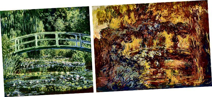 Monet in Giverny im Alter von 59 Jahren (links) und im Alter von 82 Jahren (rechts).