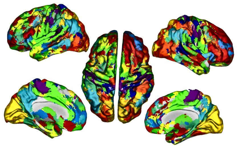 Σαρώσεις fMRI που χρησιμοποιούνται για την εκπαίδευση του μοντέλου νευρωνικού δικτύου. Πηγή: Πανεπιστήμιο Purdue