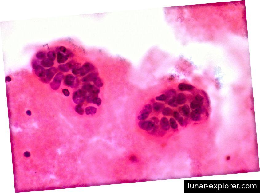 Menschliche metastatische Brustkrebszellen in der Pleuraflüssigkeit, die einen Teil der Lunge füllt. Bildnachweis: Ed Uthman (CC BY 2.0)