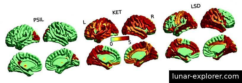 Gehirnaktivität mit (von links nach rechts) Psilocybin, Ketamin und LSD. Kredit Der Wächter
