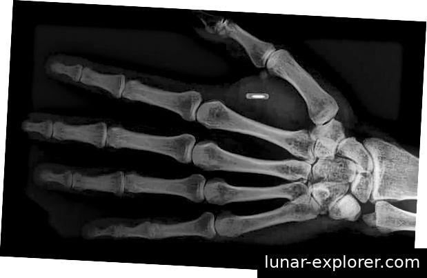 Implantate erscheinen in Röntgenstrahlen. Fotokredit: UFO-Einblick