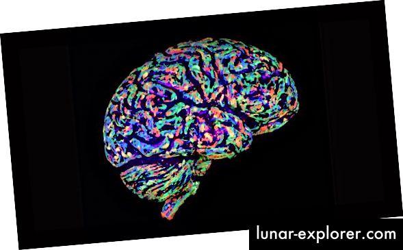 Gescanntes Bild des Gehirns