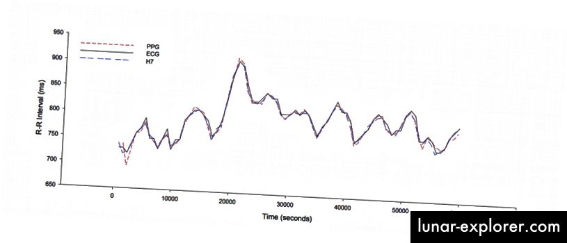 Istodobni R-R interval za pojedinog subjekta tijekom 60 sekundi snimanja za fotoplethismographic (PPG), polarni remen prsnog koša (H7) i elektrokardiogram (EKG). Moguće je. Ovdje papir.