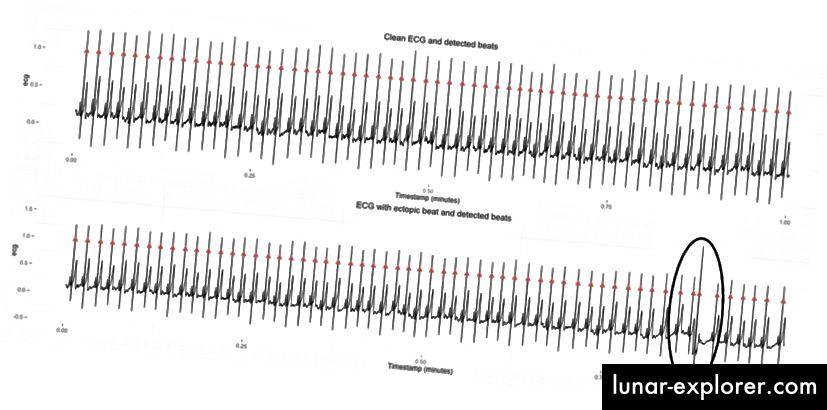 Dvije uzastopne minute EKG podataka. Druga minuta uključuje jedan jedini ektopični ritam. rMSSD za prvu minutu podataka iznosi 79 ms, za drugu je 201 ms, što je velika razlika s obzirom da se ništa nije promijenilo u smislu parasimpatičke aktivnosti. Imajte na umu da je ovo EKG, a na sve modalitete senzora utječu artefakti, ponekad različite prirode, s kojima treba rješavati, ako želimo shvatiti podatke.