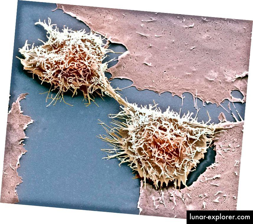HeLa-Zellen teilen, Rasterelektronenmikroskopie. Credit Steve Gschmeissner. HeLa-Zellen, die aus dem krebsartigen Gebärmutterhals von Henrietta Lacks stammen, sind eine der größten Kontaminanten in falsch identifizierten Zelllinien.