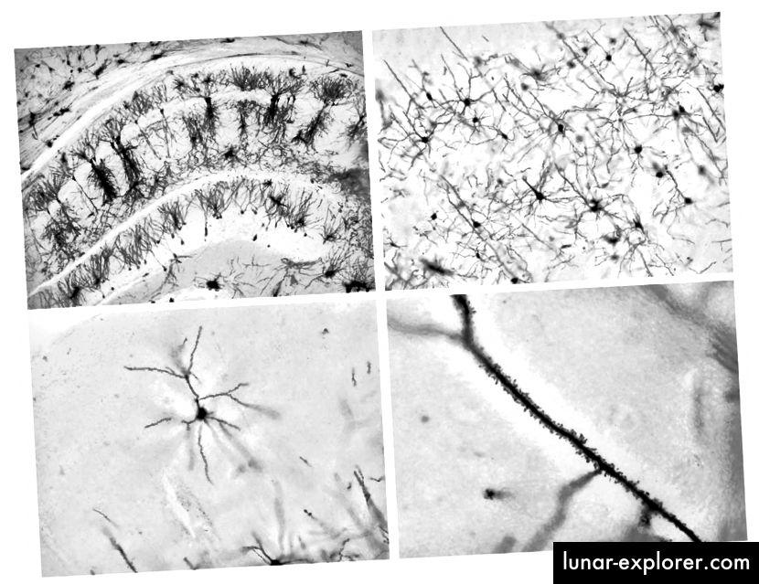 Golgijeva mrlja u hipokampusu. Mrlja nasumično označava neurone - možete vidjeti dendritične bodlje (gdje su sinapse) kao sitne izbočine duž ogranaka neurona (desno dno). Fotografiju Shelly Fan.