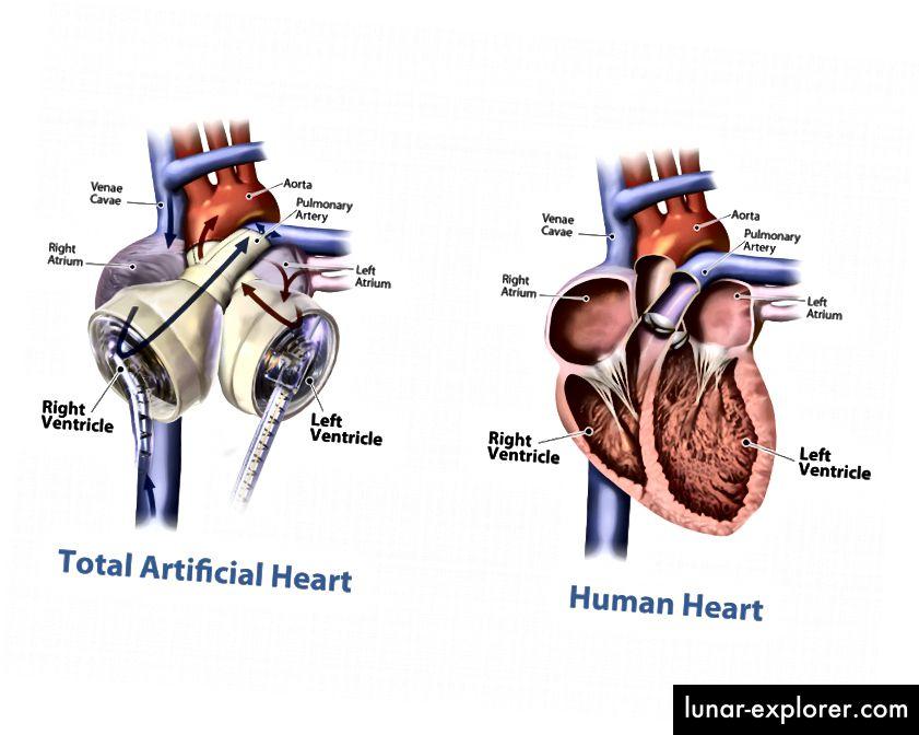 SynCardia 70cc TAH adalah pengganti total jantung. Dengan lebih dari 1.700 implan di seluruh dunia, TAH 70cc menyumbang lebih dari 600 pasien-tahun dukungan. Gambar milik SynCardia.