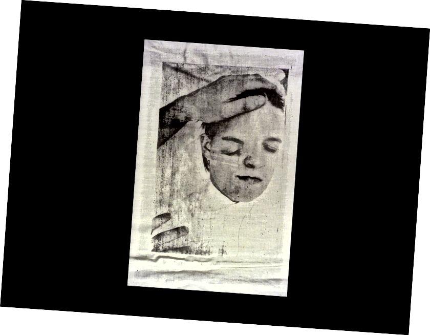 Foto Litho auf Stoff basierend auf medizinischen Bildern aus den 1900er Jahren