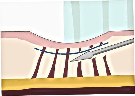 Dermatologik davolanish