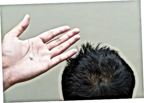 Uchinchi usul: Qisqa va boshoqli (o'g'il bolalar) [2] X tadqiqot manbai