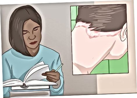Hiểu về bệnh vẩy nến