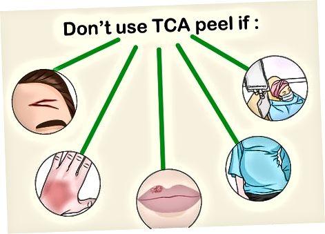 TCA peelini tayyorlash