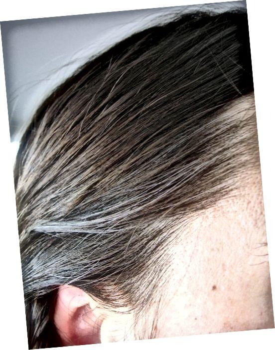 Znaky ztráty pigmentu na vlasy u šedivých vlasů se často objevují kolem vlasové linie jako první.