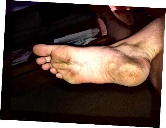 پاهای من از تمام تلقین های خشن لکه دار و کثیف به نظر می رسید.