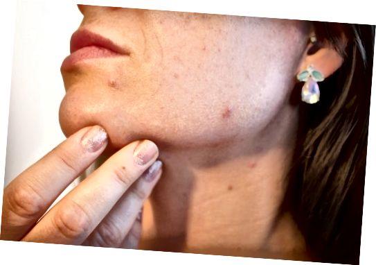 مبتلایان به پوست روغنی مستعد لکه ها و آکنه هستند.